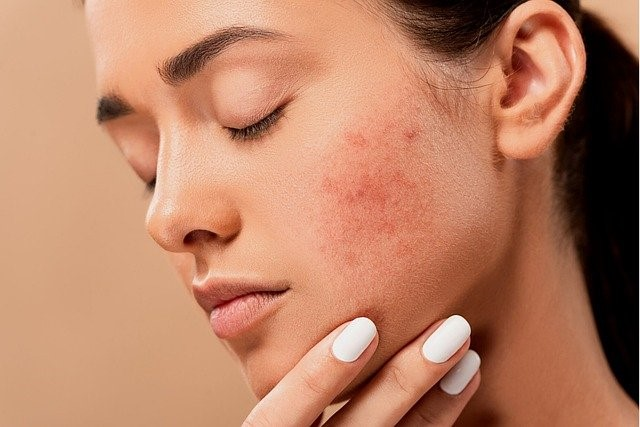 A woman with serious acne scarring on her face