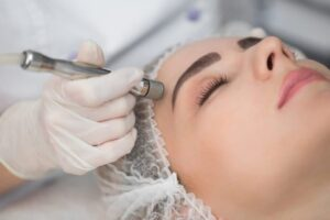 A Microdermabrasion Wand Being Dragged Across a Hair-netted Woman's Forehead