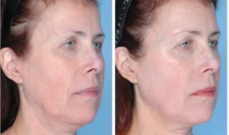 A before and after of a woman receiving ultherapy